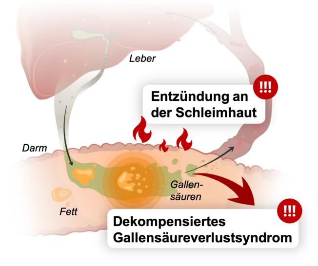 Infografik mit Leber, Darm und gestörter Gallensäure-Rückresorption
