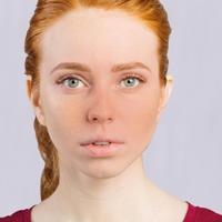 junge Frau mit rotem Gesicht