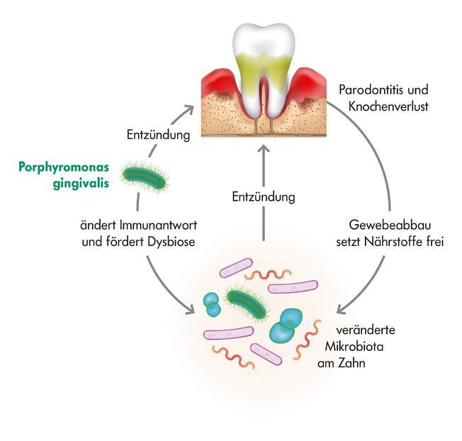 grafische Darstellung der Parodontitis-Entstehung