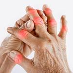 Hände mit rot hervorgehobenen Gelenken
