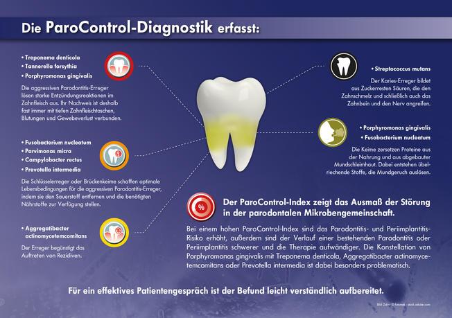 Zahn mit parodontalen Erregern