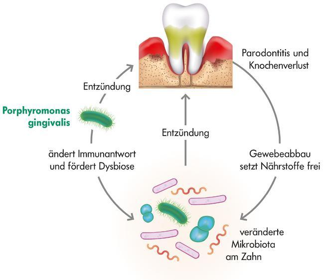 Kreislauf aus Dysbiose, Entzündung und Parodontitis