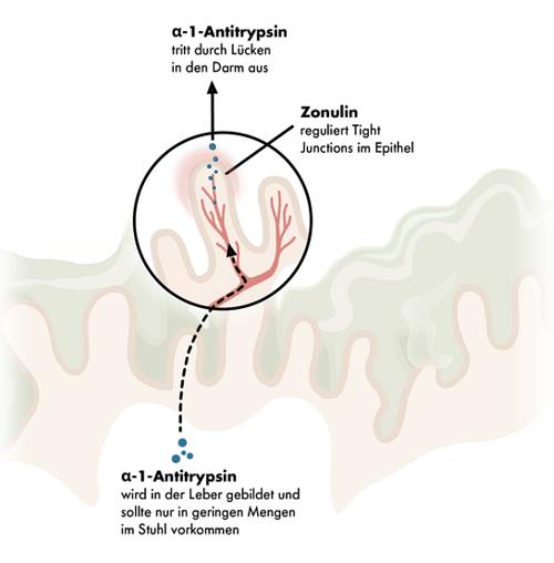 Grafische Darstellung von alpha-1-Antitrypsin, Zonulin und einem Leaky Gut