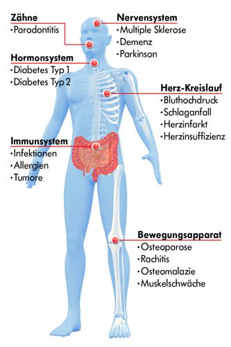 Schaubild: Klinische Bedeutung von Vitamin D